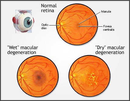 Examples of wet and dry macular degeneration