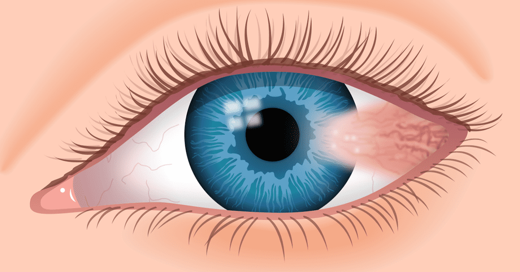 Pterygium or surfers eye - lesion growing in eye