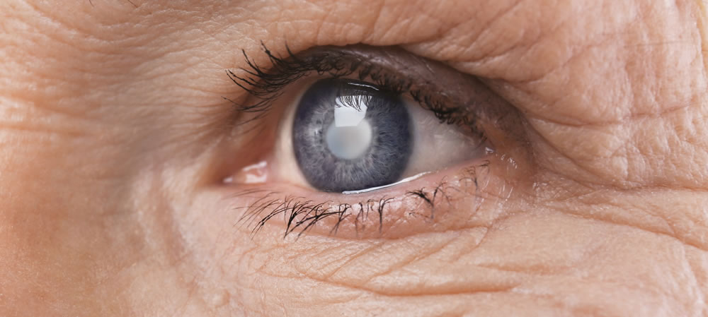 Example of an eye with a cataract